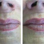 big_lips_7